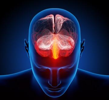 La hipertensión arterial puede afectar seriamente a la salud cerebral